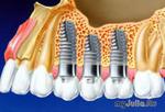 Весенние акции в клинике «ТОМСОН» при имплантации зубов.