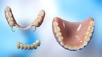 Как устанавливают съемный зубной протез