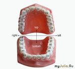 85 зубов?